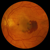 wet age-related macular degeneration